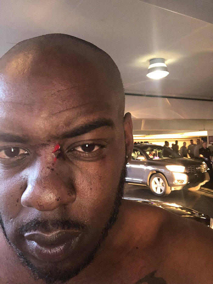 Darnell Morgan of Atlanta, seen with a cut, was attacked at Hard Rock Hotel in Las Vegas on June 17 for being gay. He was visiting Las Vegas for the his sister's wedding. (courtesy of Darnell Morgan)